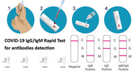 COVID-19-IgGIgM-Rapid-Test-for-antibodies-detection.jpg